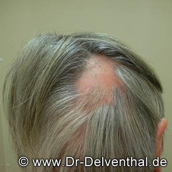 Kreisförmiger Haarausfall Alopecia Areata